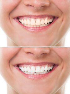 Teeth bleaching/whitening in Twin Falls, Idaho
